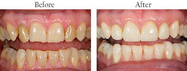 Dental Images Wheatley Heights